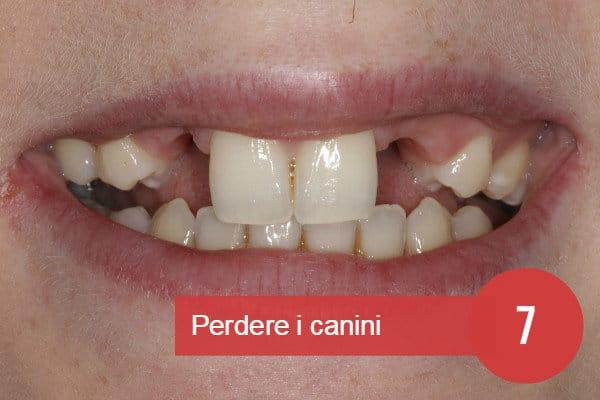 Sognare di perdere un dente oppure un dente che si spezza o denti storti c2079c11127